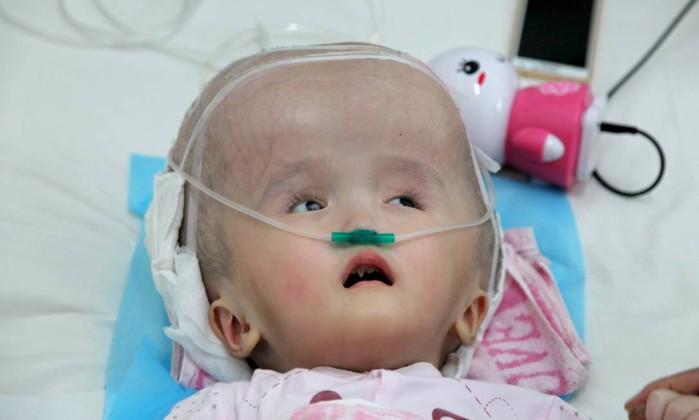 Han Han, de 3 anos, sofre de hidrocefalia, acúmulo de líquido dentro do crânio, e passou por cirurgia para implantar três peças de titânio para substituir seu crânio - (Foto: CHINA STRINGER NETWORK / REUTERS)